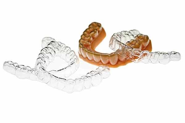 Impresión 3D odontología